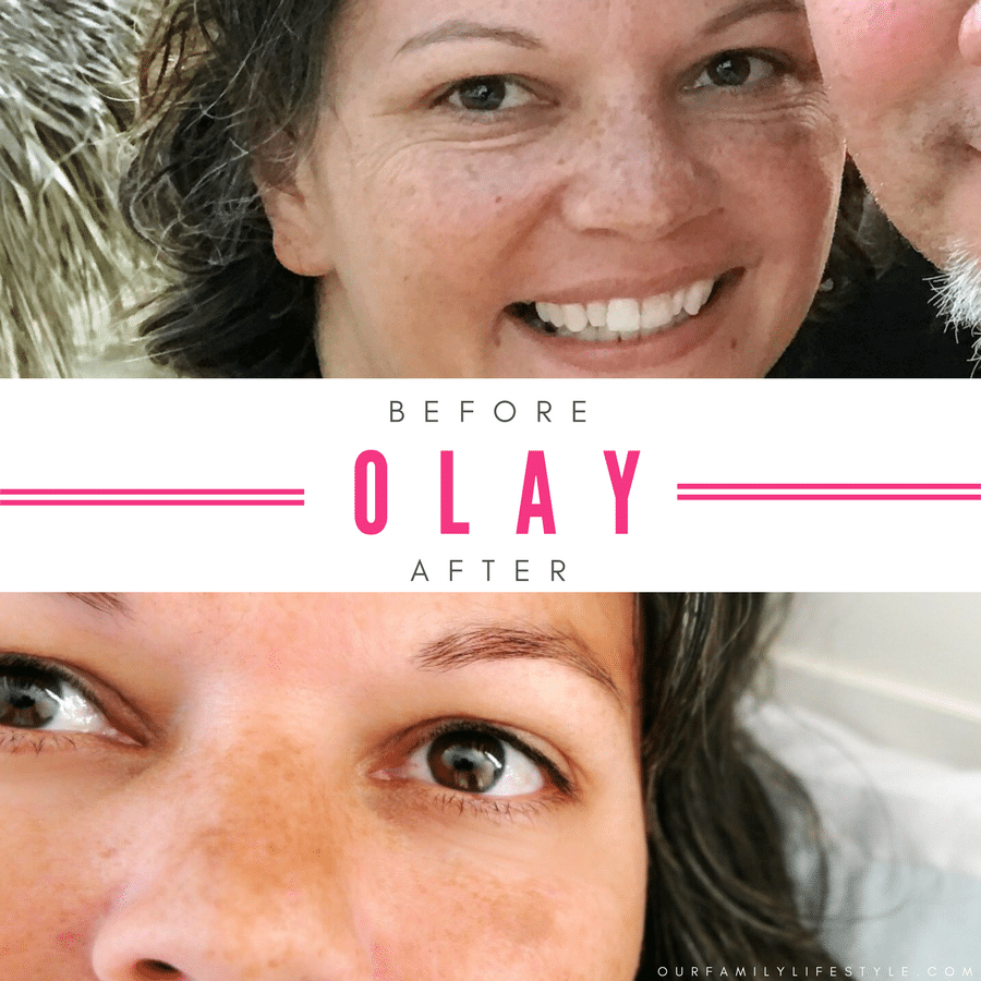 before and after Olay 28 Day