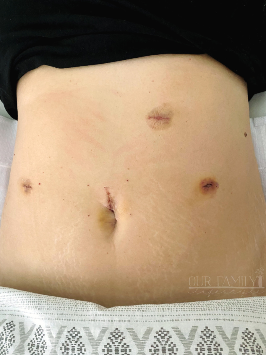 post hysterectomy abdominal cuts
